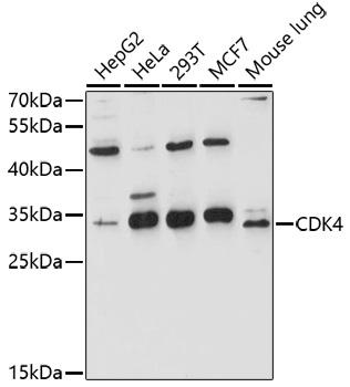 CDK4 Polyclonal Antibody Western Blot, CDK4 Antibody Western Blot, CDK4 Western Blot, CDK4 Rabbit pAb Western Blot