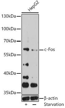 c-Fos Polyclonal Antibody Western Blot, c-Fos Antibody Western Blot, c-Fos Western Blot, c-Fos Rabbit pAb Western Blot