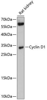 Cyclin D1 Polyclonal Antibody Western Blot, Cyclin D1 Antibody Western Blot, Cyclin D1 Western Blot, Cyclin D1 Rabbit pAb Western Blot