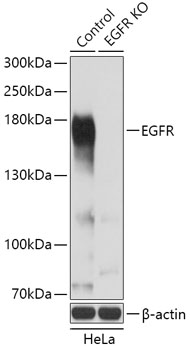 EGFR Polyclonal Antibody Western Blot, EGFR Antibody Western Blot, EGFR Western Blot, EGFR Rabbit pAb Western Blot