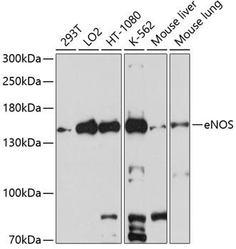eNOS Polyclonal Antibody Western Blot, eNOS Antibody Western Blot, eNOS Western Blot, eNOS Rabbit pAb Western Blot