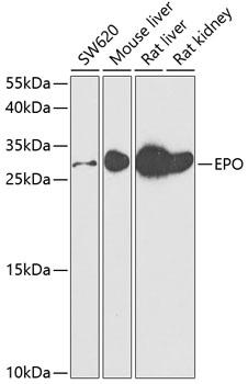 EPO Polyclonal Antibody Western Blot,  EPO Antibody Western Blot, EPO Western Blot, EPO Rabbit pAb Western Blot