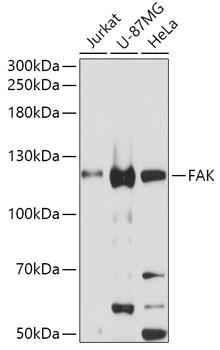 FAK Polyclonal Antibody Western Blot, FAK Antibody Western Blot, FAK Western Blot, FAK Rabbit pAb Western Blot