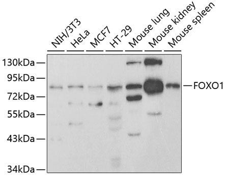 FOXO1 Polyclonal Antibody Western Blot, FOXO1 Antibody Western Blot, FOXO1 Western Blot, FOXO1 Rabbit pAb Western Blot