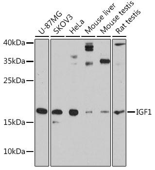 IGF1 Polyclonal Antibody Western Blot, IGF1 Antibody Western Blot, IGF1 Western Blot, IGF1 Rabbit pAb Western Blot
