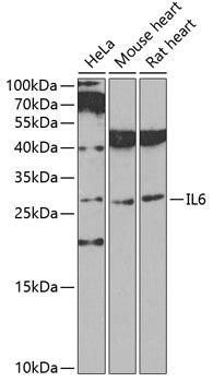 IL6 Polyclonal Antibody Western Blot, IL6 Antibody Western Blot, IL6 Western Blot, IL6 Rabbit pAb Western Blot