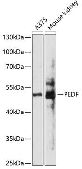 PEDF Polyclonal Antibody Western Blot, PEDF Antibody Western Blot, PEDF Western Blot, PEDF Rabbit pAb Western Blot