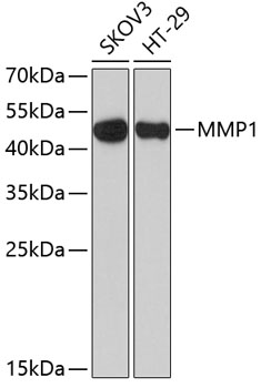 MMP1 Polyclonal Antibody Western Blot, MMP1 Antibody Western Blot, MMP1 Western Blot, MMP1 Rabbit pAb Western Blot