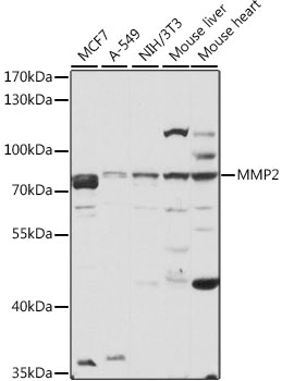 MMP2 Polyclonal Antibody Western Blot, MMP2 Antibody Western Blot, MMP2 Western Blot, MMP2 Rabbit pAb Western Blot