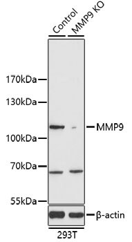 MMP9 Polyclonal Antibody Western Blot, MMP9 Antibody Western Blot, MMP9 Western Blot, MMP9 Rabbit pAb Western Blot