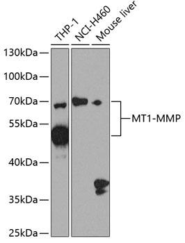 MT1-MMP Polyclonal Antibody Western Blot, MT1-MMP Antibody Western Blot, MT1-MMP Western Blot, MT1-MMP Rabbit pAb Western Blot