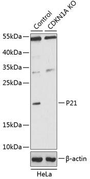 P21 Polyclonal Antibody Western Blot, P21 Antibody Western Blot, P21 Western Blot, P21 Rabbit pAb Western Blot