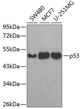 p53 Polyclonal Antibody Western Blot, p53 Antibody Western Blot, p53 Western Blot, p53 Rabbit pAb Western Blot