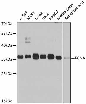 PCNA Polyclonal Antibody Western Blot, PCNA Antibody Western Blot, PCNA Western Blot, PCNA Rabbit pAb Western Blot