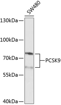 PCSK9 Polyclonal Antibody Western Blot, PCSK9 Antibody Western Blot, PCSK9 Western Blot, PCSK9 Rabbit pAb Western Blot