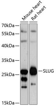 SLUG Polyclonal Antibody Western Blot, SLUG Antibody Western Blot, SLUG Western Blot, SLUG Rabbit pAb Western Blot