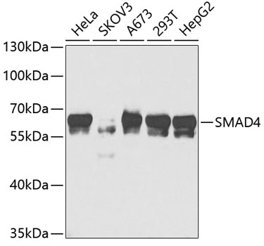 SMAD4 Polyclonal Antibody Western Blot, SMAD4 Antibody Western Blot, SMAD4 Western Blot, SMAD4 Rabbit pAb Western Blot