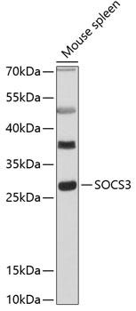 SOCS3 Polyclonal Antibody Western Blot, SOCS3 Antibody Western Blot, SOCS3 Western Blot, SOCS3 Rabbit pAb Western Blot