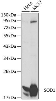SOD1 Polyclonal Antibody Western Blot, SOD1 Antibody Western Blot, SOD1 Western Blot, SOD1 Rabbit pAb Western Blot