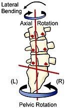 Unstable Sacrum causes Pelvic Pain