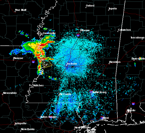 Radar Image for Severe Thunderstorms near Beechwood, MS at 8/11/2015 4:23 AM CDT