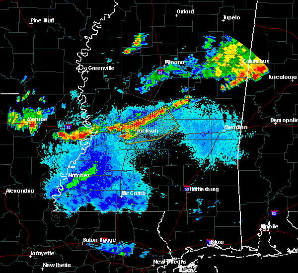 Radar Image for Severe Thunderstorms near Flora, MS at 9/11/2015 5:59 PM CDT