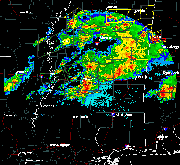 Radar Image for Severe Thunderstorms near Brandon, MS at 3/31/2016 6:52 PM CDT