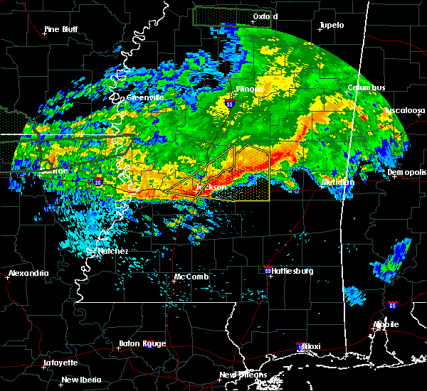 Radar Image for Severe Thunderstorms near Brandon, MS at 4/11/2016 5:31 PM CDT