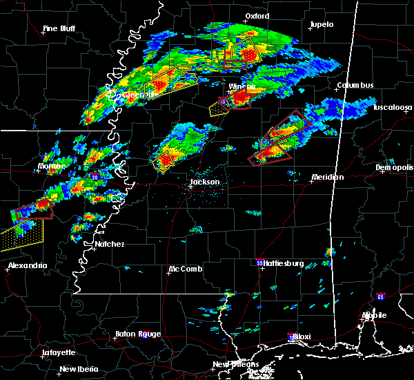 Radar Image for Severe Thunderstorms near Flora, MS at 11/29/2016 4:57 PM CST