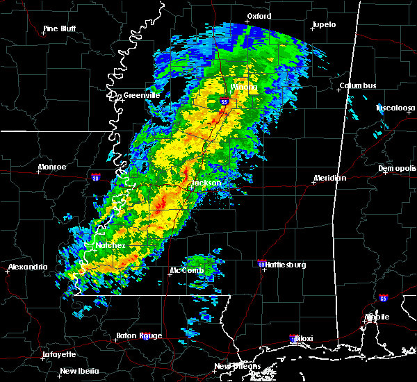 Radar Image for Severe Thunderstorms near Flora, MS at 1/22/2018 7:00 AM CST