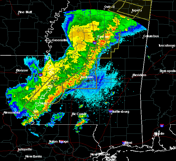 Radar Image for Severe Thunderstorms near Brandon, MS at 4/3/2018 8:47 PM CDT
