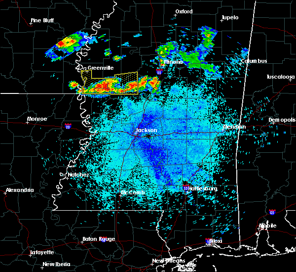 Radar Image for Severe Thunderstorms near Tchula, MS at 7/20/2018 12:29 AM CDT
