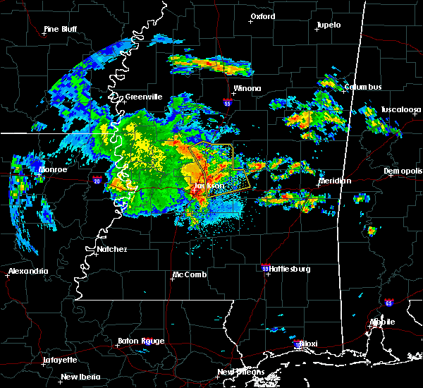 Radar Image for Severe Thunderstorms near Flowood, MS at 4/6/2019 4:41 PM CDT