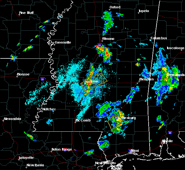 Radar Image for Severe Thunderstorms near Flowood, MS at 7/15/2019 4:15 PM CDT