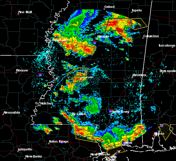 Radar Image for Severe Thunderstorms near Flora, MS at 6/24/2015 4:50 PM CDT