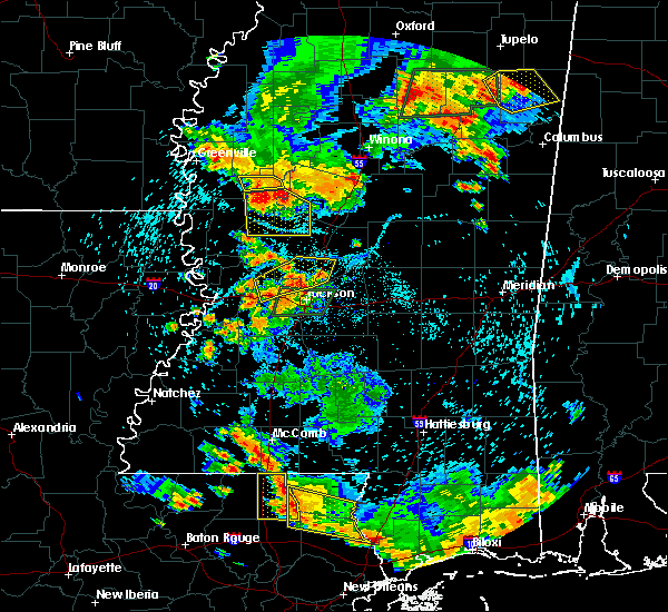 Radar Image for Severe Thunderstorms near Flora, MS at 6/24/2015 5:07 PM CDT