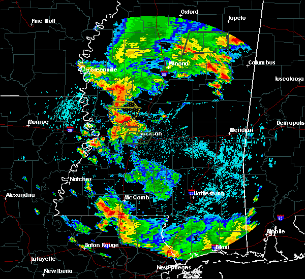 Radar Image for Severe Thunderstorms near Flora, MS at 6/24/2015 5:35 PM CDT