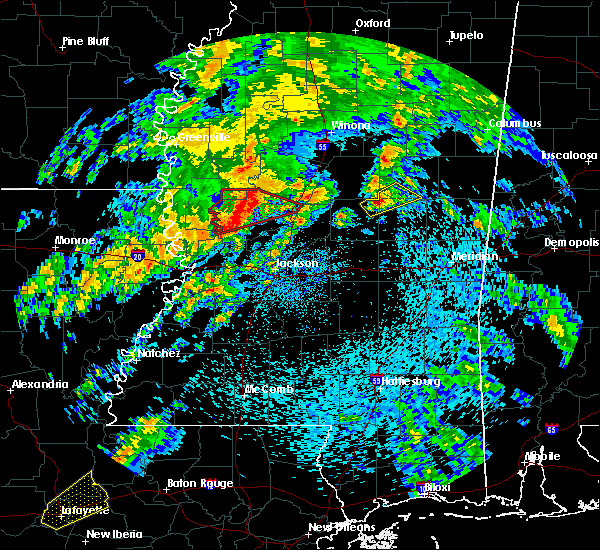 Radar Image for Severe Thunderstorms near Noxapater, MS at 4/12/2020 1:36 PM CDT