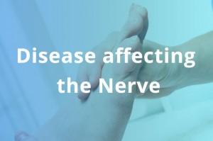 IL-418-istock-nerve-disease-image