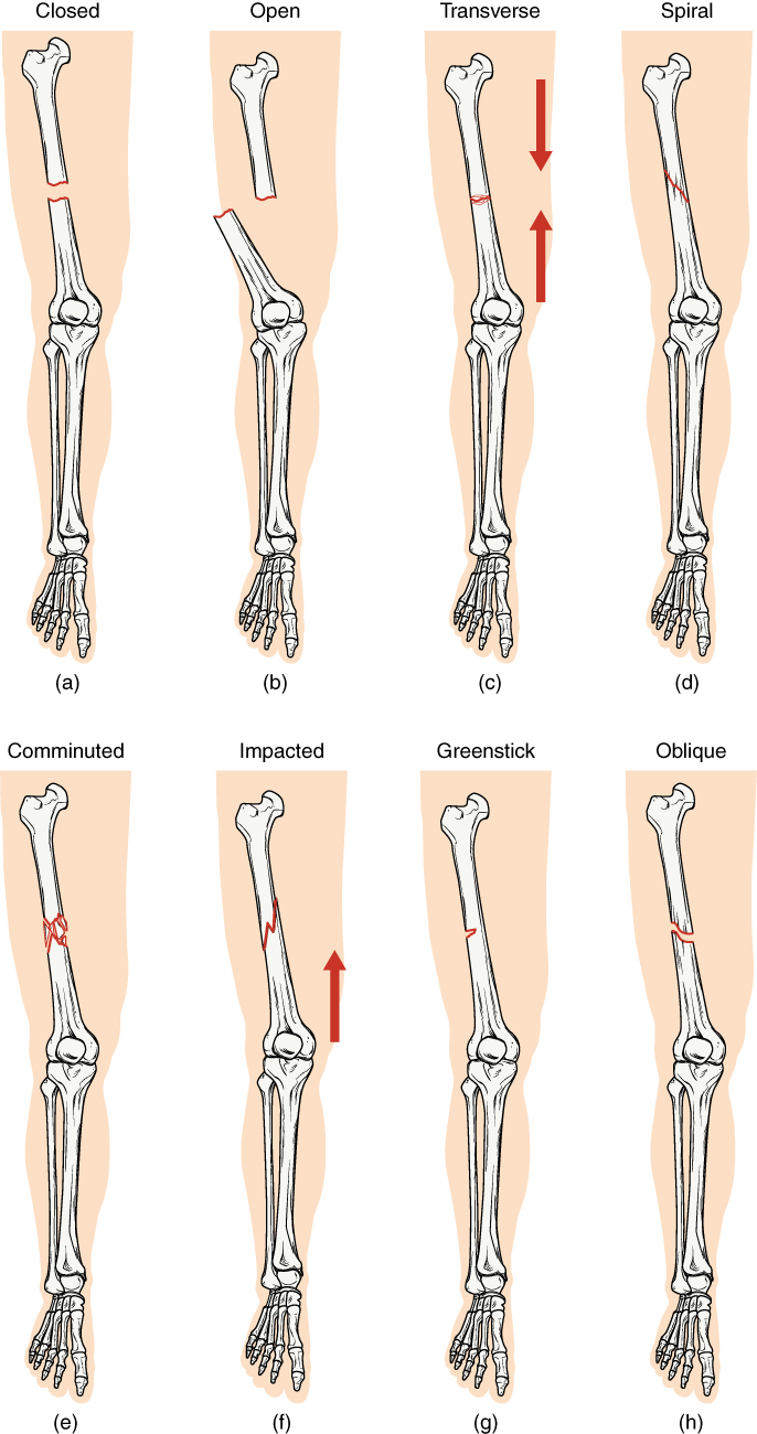 Anatomy and Physiology - Fractures: Bone Repair