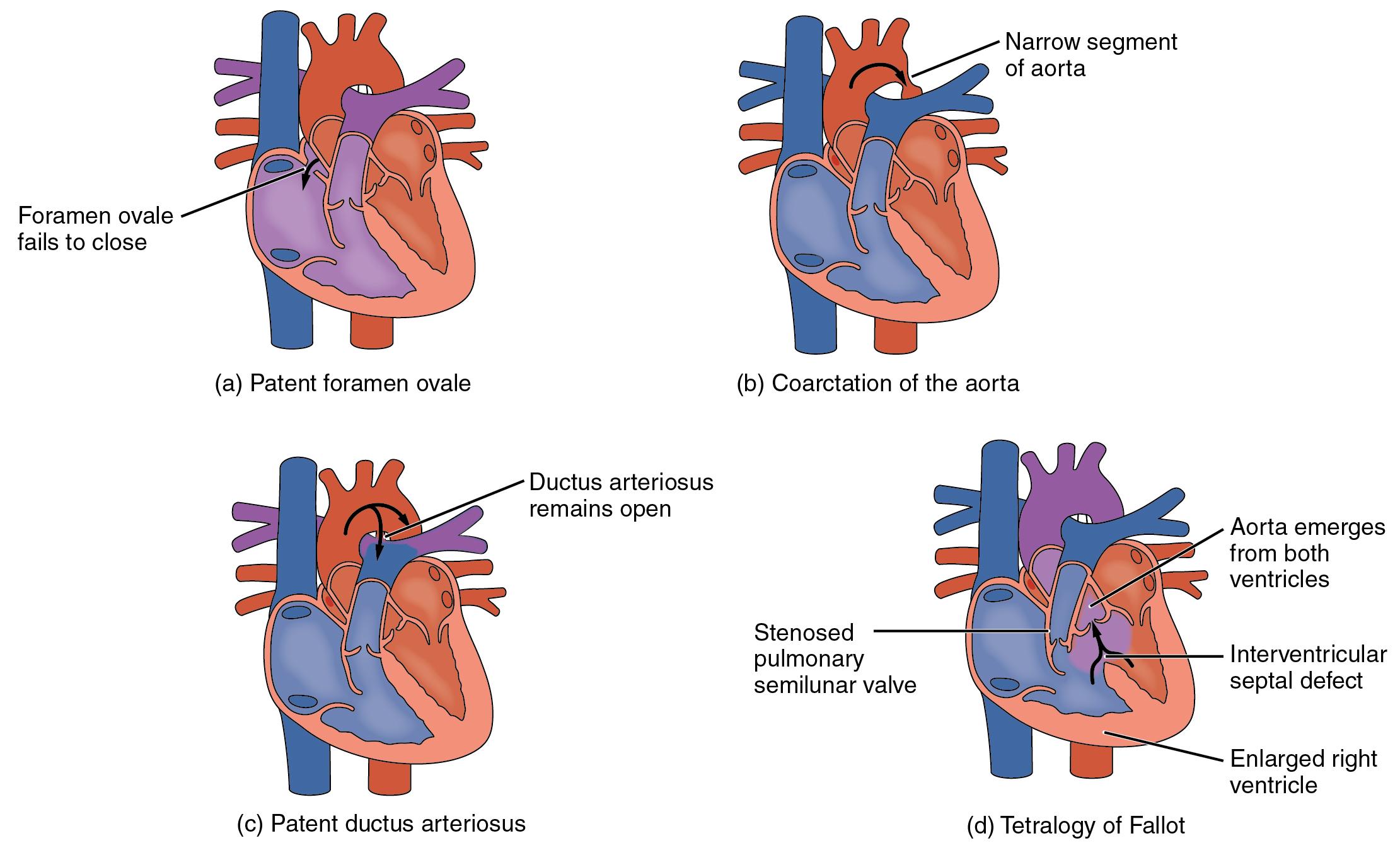 Anatomy and Physiology - Heart Anatomy