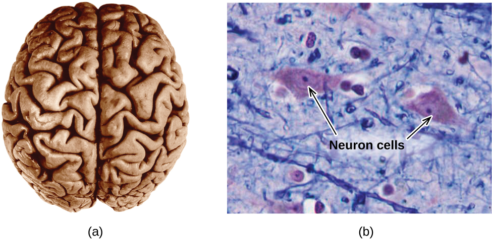 """Two pictures are shown. The left picture shows the human brain. The right picture is a microscopic image that depicts two large irregularly shaped masses in a field of threadlike material interspersed with smaller, relatively round masses. The two larger masses are labeled with arrows and the phrase """"Neuron cells."""""""