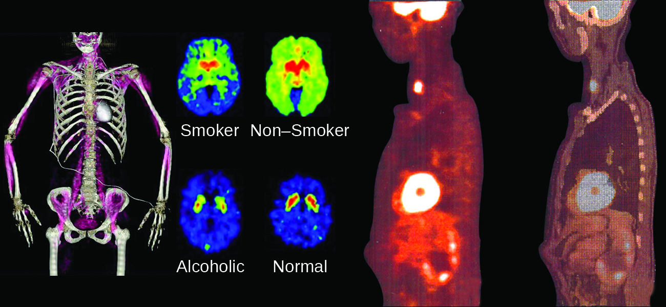 "An image shows four sets of medical pictures. The first is the torso and arms of a human skeleton with purple shading in the muscular regions. The second is a set of four images; the top left, labeled ""Smoker,"" shows an oval-shaped image that is blue on the outside rim, green as you move inward, and bright red near the center while the top right, labeled ""Non-Smoker,"" shows an oval-shaped image that is shaded bright green over most of the image and bright red near the center. The lower left image of the four, labeled ""Alcoholic,"" shows an oval-shaped image that is almost entirely blue with two small yellow-rimmed, red dots near the upper middle section while the lower right image, labeled ""Normal,"" looks very similar to the lower left, but the red regions are slightly larger. The final image show two scans of a human torso that is turned to face to the side. The left scan has three bright yellow-white areas; one in the throat, one in the chest and one in the head. The right scan is the same as the left except the bright regions are dim and the internal organs are more clearly defined."