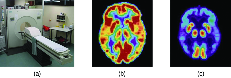 """Three pictures are shown and labeled """"a,"""" """"b"""" and """"c."""" Picture a shows a machine with a round opening connected to an examination table. Picture b is a medical scan of the top of a person's head and shows large patches of yellow and red and smaller patches of blue, green and purple highlighting. Picture c also shows a medical scan of the top of a person's head, but this image is mostly colored in blue and purple with very small patches of red and yellow."""