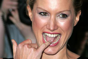 Alice Evans Tongue