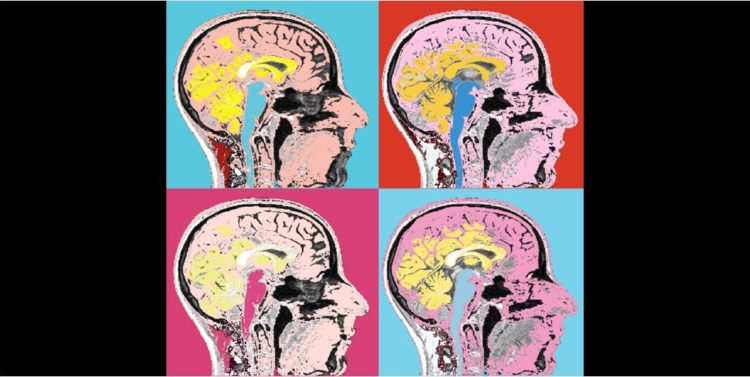 The More Complex Our Brains, the More Different They Get