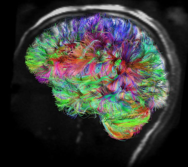 To Boost Brain Health and Performance, Harness Neuroplasticity The Right Way