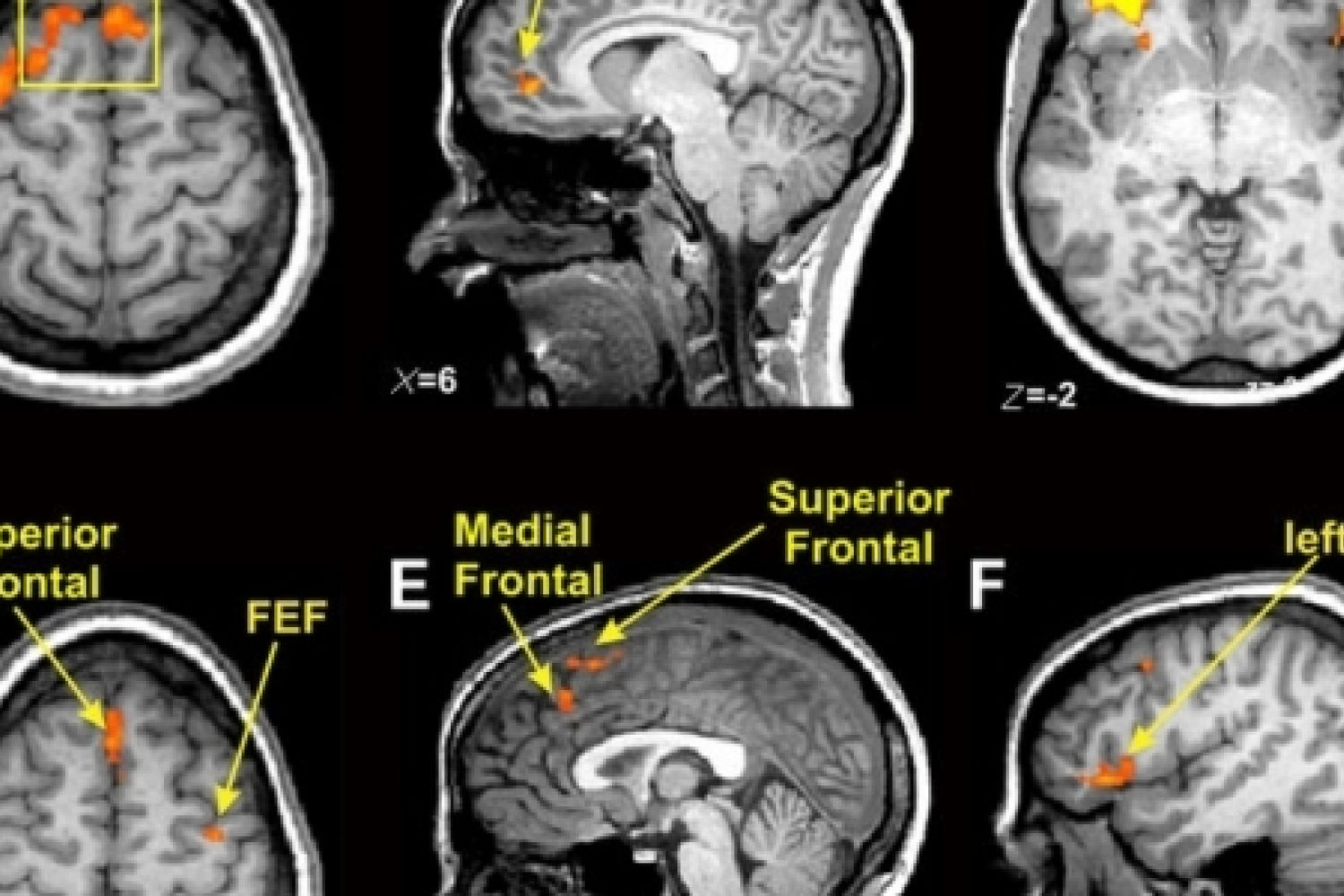 Controversial Science of Brain Imaging