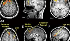 Image for Controversial Science of Brain Imaging