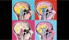 Image for The More Complex Our Brains, the More Different They Get